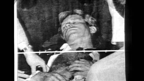 RFK Lays Dying